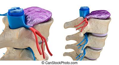 cuerda, espinal, abultado, presión, disco, debajo