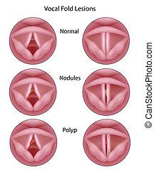 cuerda, lesiones, vocal, eps8