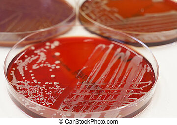 Cultures - Colonies of Gram negative bacteria growing on the...