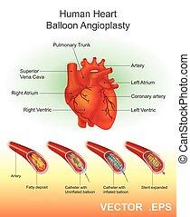 cuore, balloon, illustration., umano, angioplasty.vector
