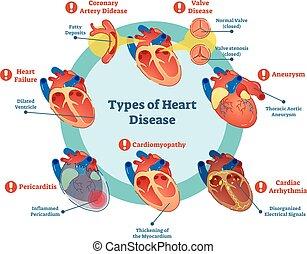cuore, collezione, malattia, illustrazione, diagramma, vettore, tipi