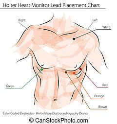 cuore, collocamento, monitor, piombo, holter, grafico