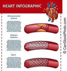 cuore, realistico, infographic, terapia, chirurgia, bandiera