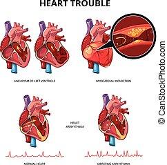 cuore, vettore, malattia, infographics