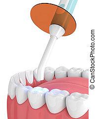 curado, render, luz, dental, polymerization, lámpara, ...