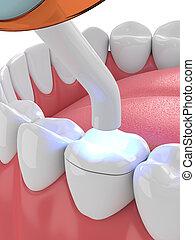 curado, render, luz, dental, polymerization, lámpara, onlay...