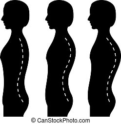 Curvature of the spine, vector illustration