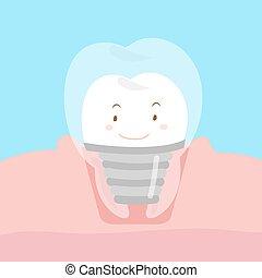 cute cartoon dental implants - happy cute cartoon dental...