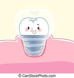 cute cartoon dental implants with health concept