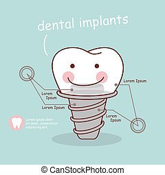 cute cartoon tooth implant treatment, great for health...
