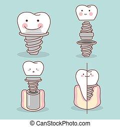 cute, implante, caricatura, dente
