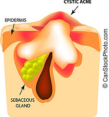 Cystic acne. The structure of the skin. Infographics. Vector illustration on isolated background.