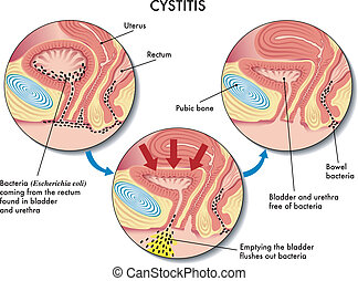 Cystitis - medical illustration of the effects of the...