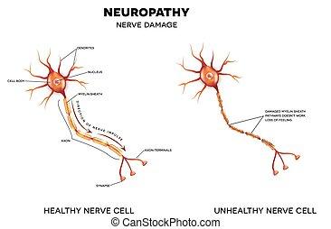 daño, nervio, neuropathy