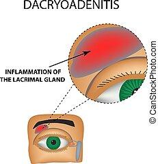 dacryoadenitis., lacrimal, 隔離された, イラスト, バックグラウンド。, infographics., ベクトル, gland., 炎症, 構造, eye.