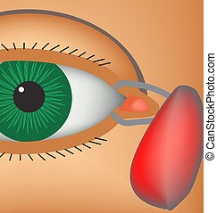 Dacryocyst. Inflammation of the lacrimal sac of the eye. The...