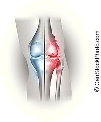 Damaged and healthy joint design. Part of the joint normal ...