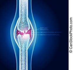 Damaged joint illustration, abstract x ray design