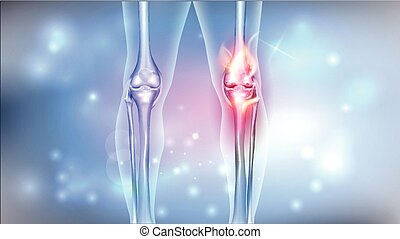 Damaged painful joint bright design