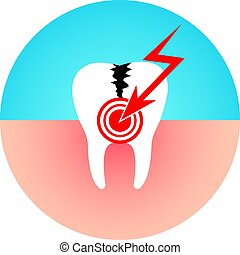 Caries disease flat vector illustration. - Damaged tooth....