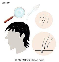 dandruff, com, a, doença, prevenção, e, tratamento