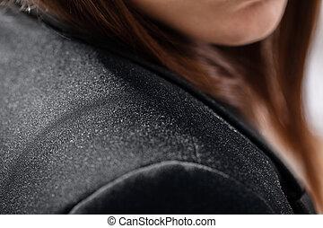 dandruff, ligado, mulher negócios, ombro