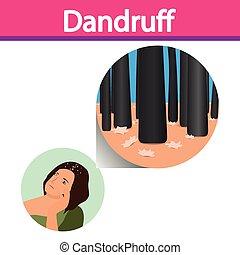 dandruff, vettore, closeup, su, pelle