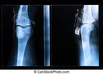 de chirurgie van de knie, na, rontgen, arthroscopic