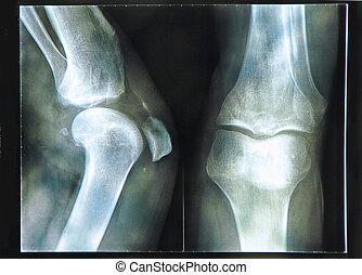 de röntgenstraal van de knie
