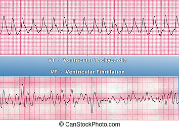Ventricular Tachycardia - is fast heart rhythm, that originates in one of the ventricles of the heart. This is a potentially life-threatening arrhythmia because it may lead to ventricular fibrillation, asystole, and sudden death. Ventricular fibrillation is a cause of cardiac arrest and sudden ...