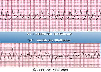 Deadly Heart Rhythms - VT & VF - Ventricular Tachycardia - ...