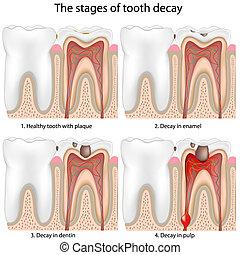 decadência dente