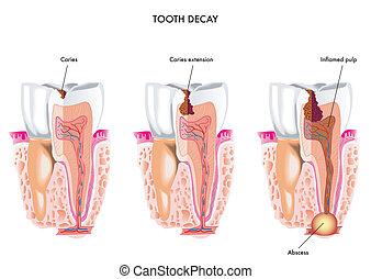decadimento dente
