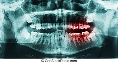Tooth Pain On X-Ray