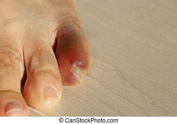 dedo del pie, poco, bruising, severo, inflamación