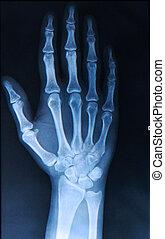 dedos, hand/, radiografía