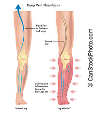 Deep vein thrombosis - medical illustration of the symptoms...