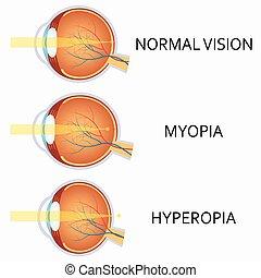 defects., miopia, hyperopia., olho, óptico, human
