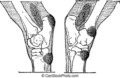 Defects of the Hock or Gambrel of a Horse, vintage engraving...