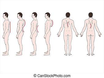deformación, Espina dorsal