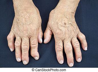 deformado, mujer, artritis reumatoidea, manos