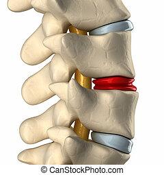 degenerated, 磁盤, 在, 脊椎