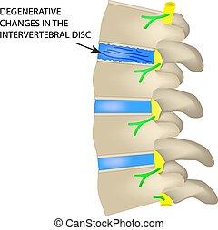 Degenerative changes in the intervertebral disc. Vector illustration on isolated background