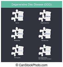 Degenerative Disc Disease.