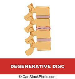 degenerativo, disco
