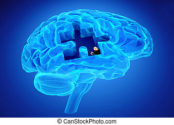 demência, doença, e, um, perda, de, cérebro, função, e,...