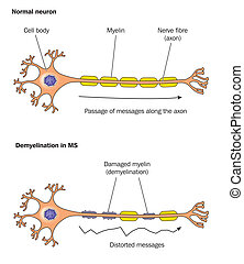 Demyelinisation - Demyelination in multiple sclerosis -...