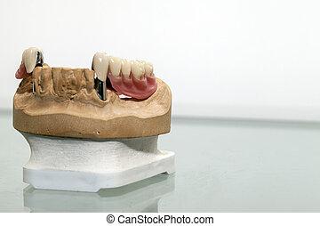 dent, zirconium, porcelaine, plaque
