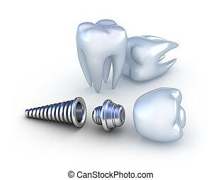 dentaal, implantaat, en, teeth, vrijstaand