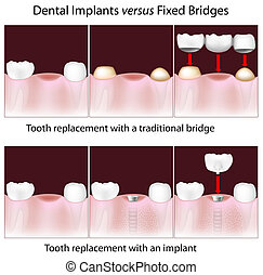 dentaal, implants, tegen, vast, brug